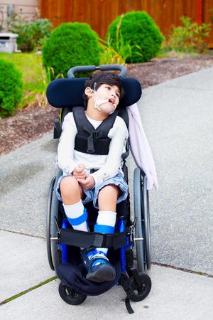 Behindertes Kind