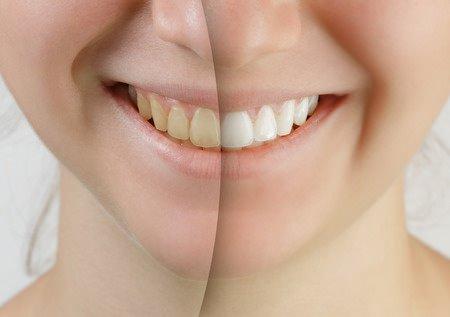 Gelbe Zähne - so werden sie wieder weiss